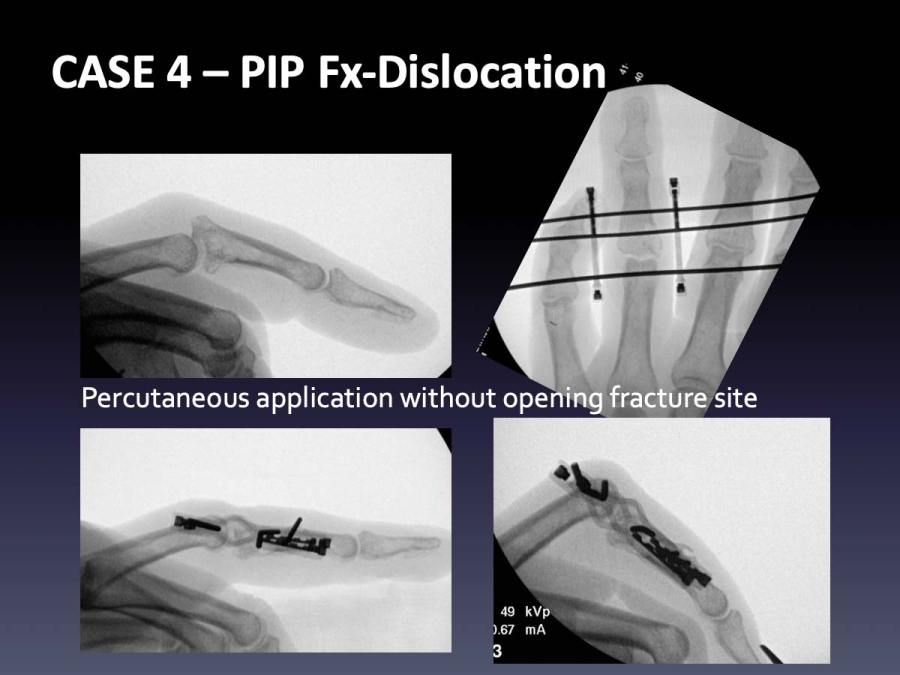 CASE 4: PIP Fx-Dislocation