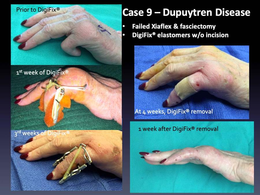 Case 9: Dupuytren Disease