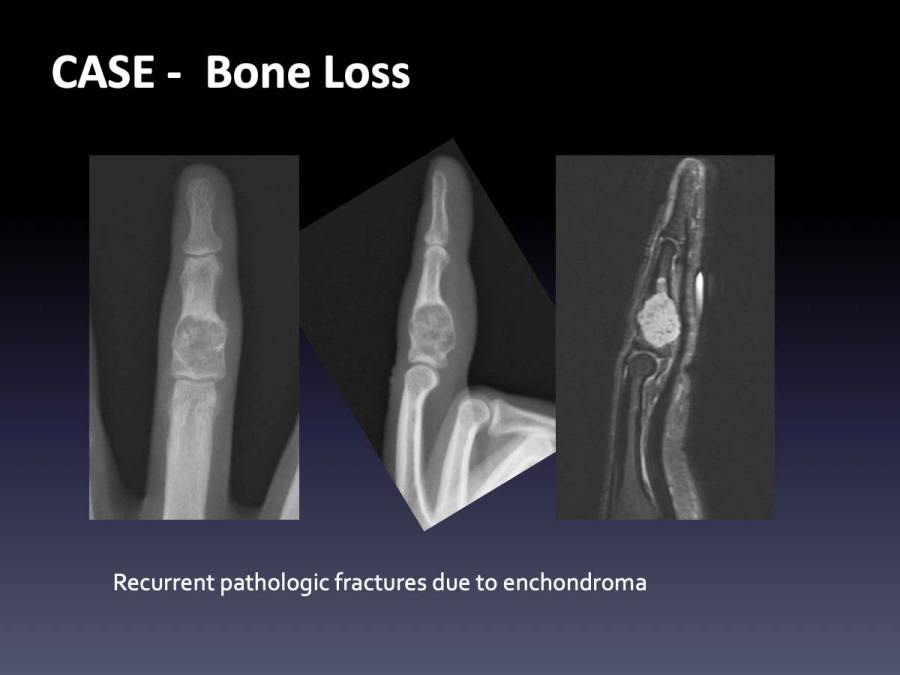 CASE: Bone Loss