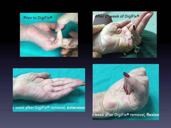 The FDA approves the DigiFix® External Fixator for Dupuytren's contractures of the hand