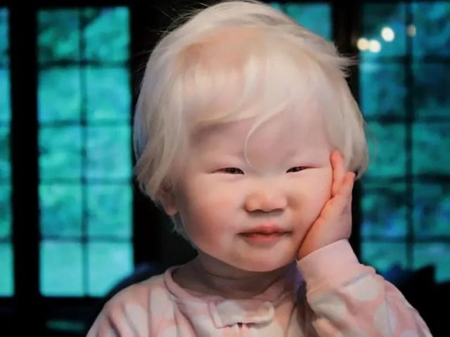 fotos-personas-albinas-13
