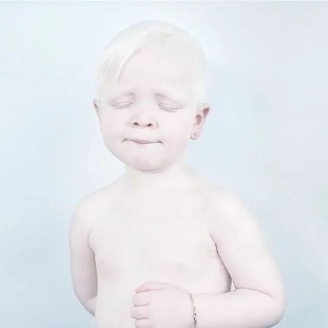 fotos-personas-albinas-17