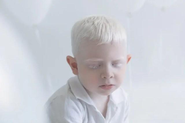 fotos-personas-albinas-4