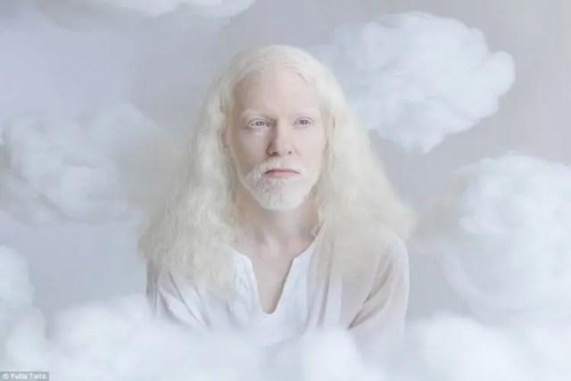 fotos-personas-albinas-6