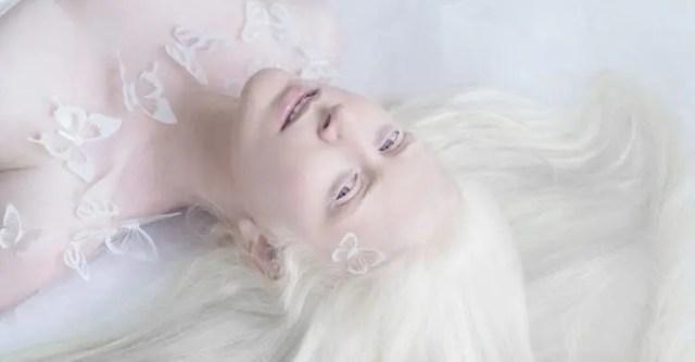 fotos-personas-albinas-9