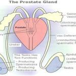 How to cope with prostate problem