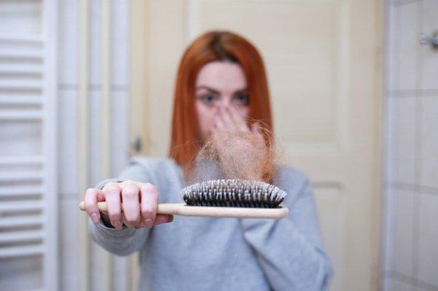 hair loss in females