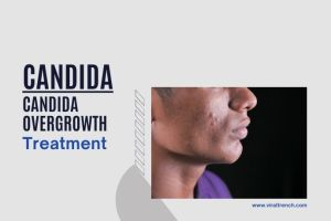 , Candida Overgrowth and Their Treatment