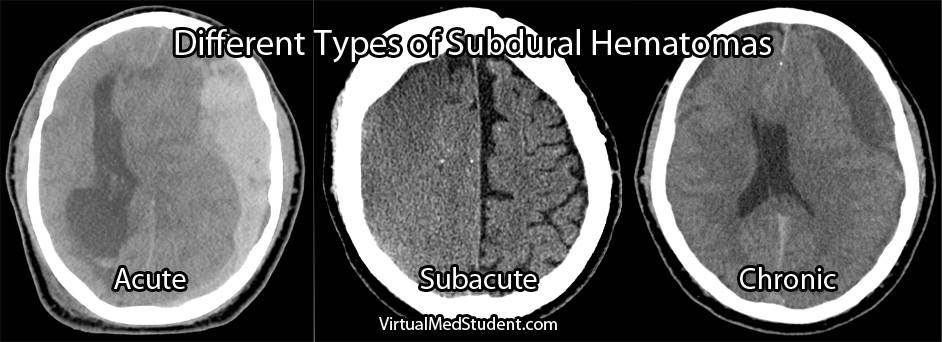 Image result for subdural haemorrhage ct