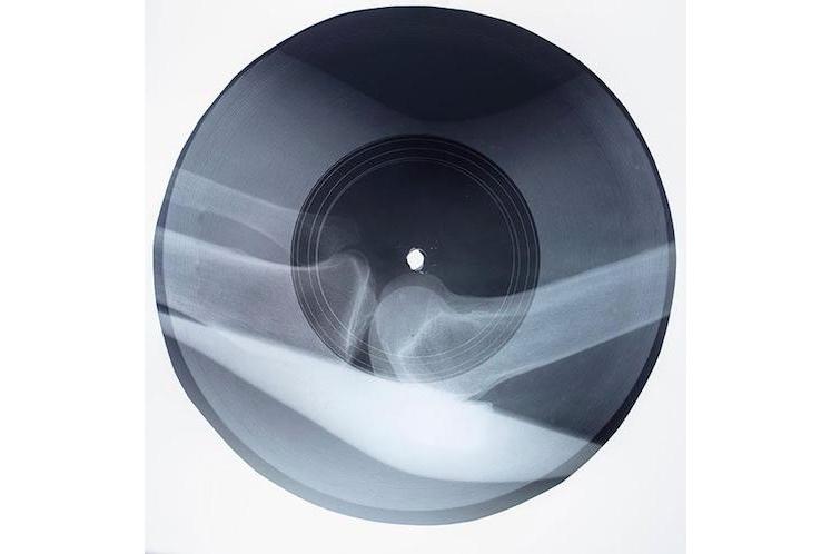 Massive Attack X-Ray Records 8