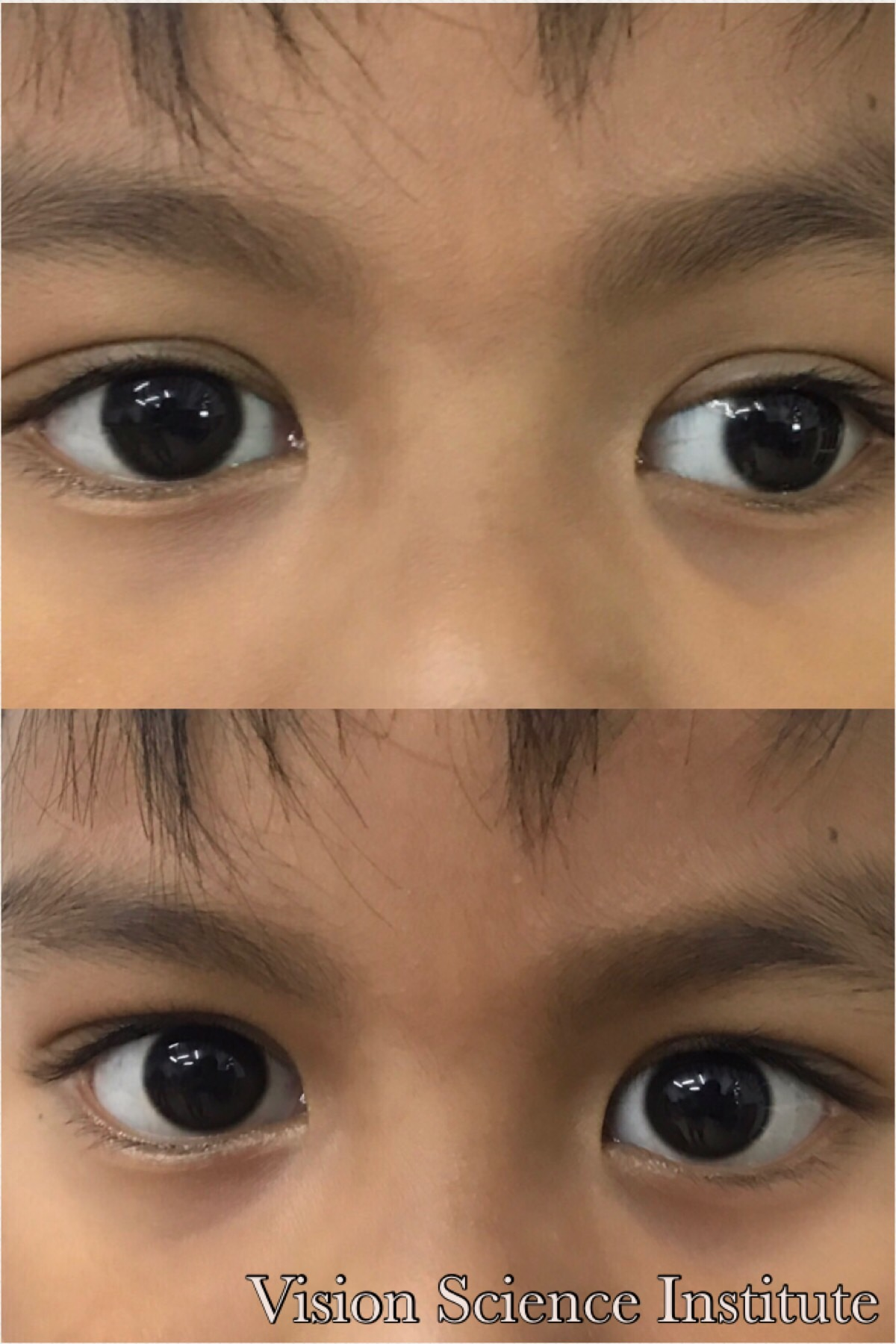 Strabismus Vision Therapy Philippines