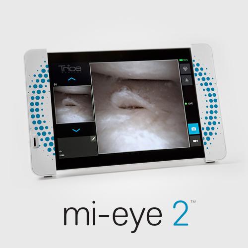 mi-eye 2™