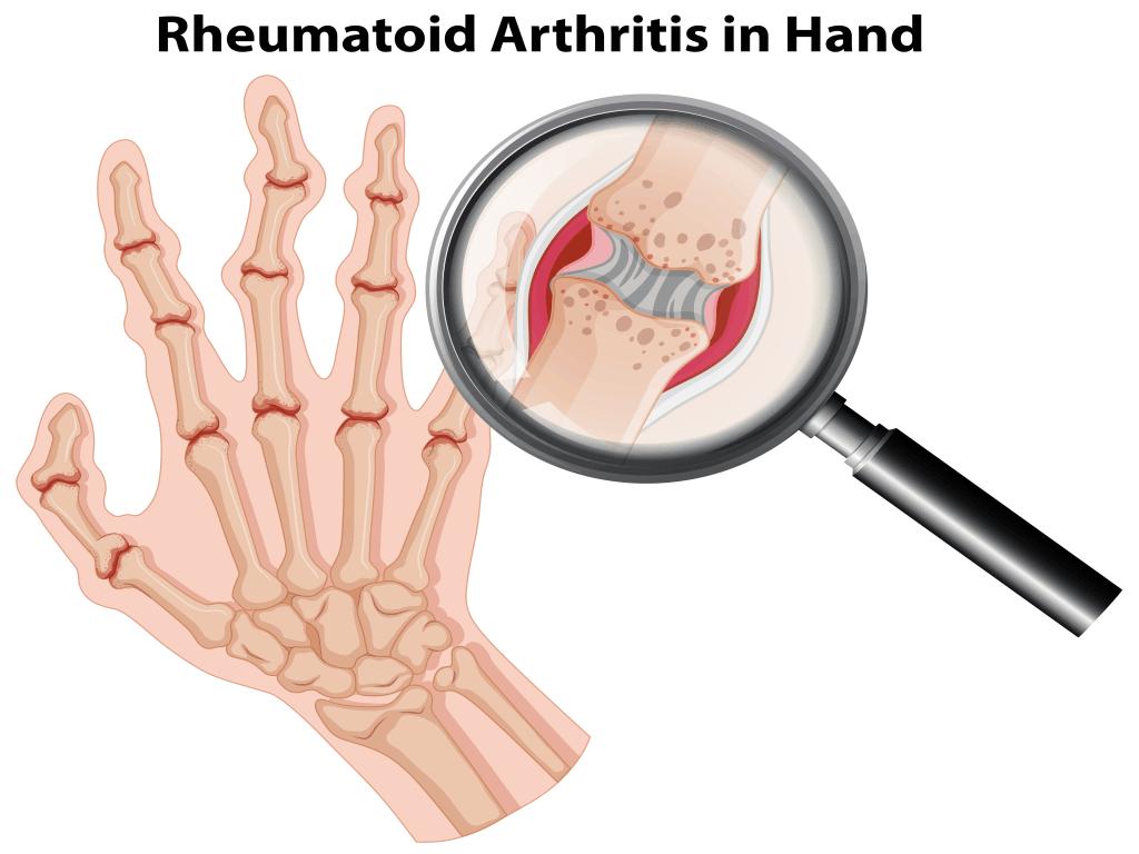 Rheumatoid Arthritis Treatment Can Arthritis Be Cured