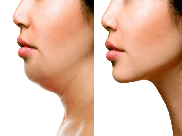 Why People Love Kybella Double Chin Treatment Procedure All Over The World 1