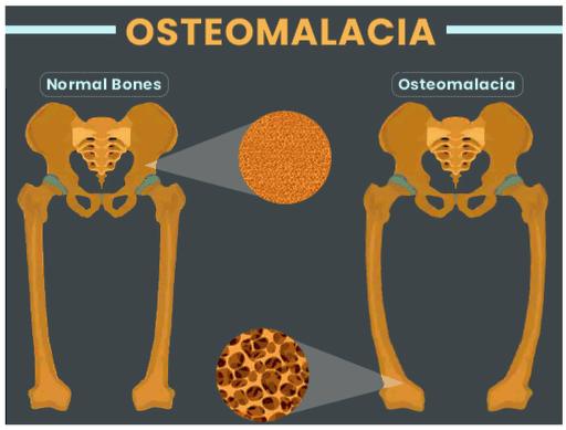 Metabolic Bone Disease - Symptoms, Causes, Diagnosis, Treatment And Prevention In Human Osteomalacia