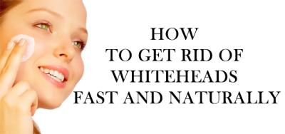 Cara Mudah Hilangkan Whitehead dan Cantikkan Kulit