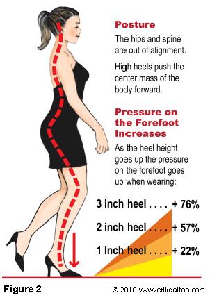kasut tumit tinggi dan tulang belakang