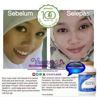 putihkan kulit dengan vitamin c 6