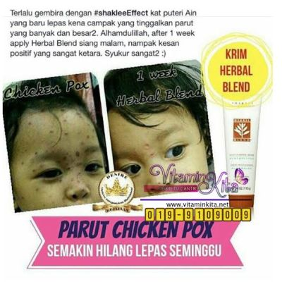testimoni chicken pox herbal blend 2