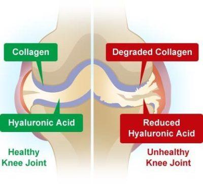 kolagen bantu sendi sihat