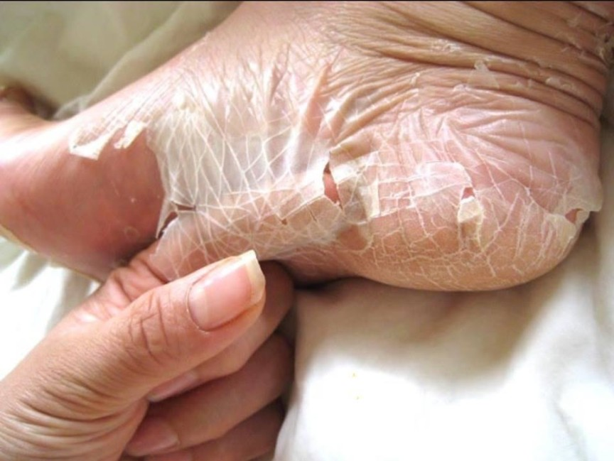 peeling piedi maschera calzini esfoliazione