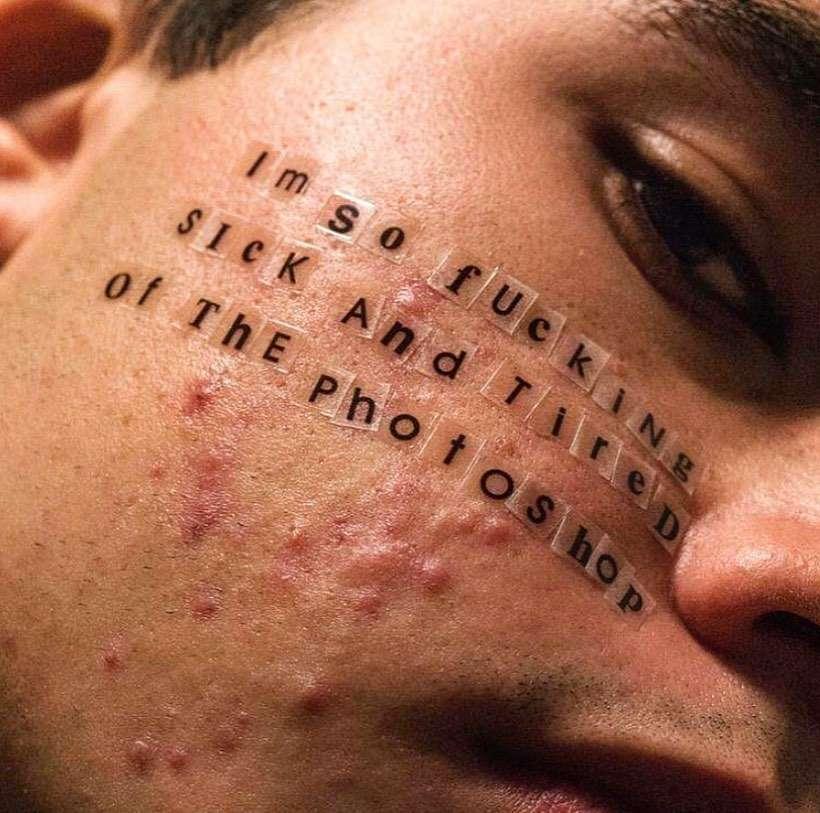 acne e brufoli senza filtri