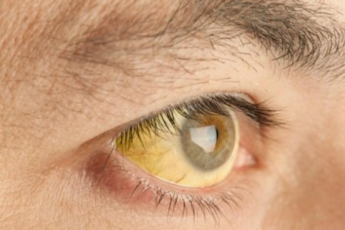 Dois casos de febre amarela são descartados na Paraíba, diz Saúde