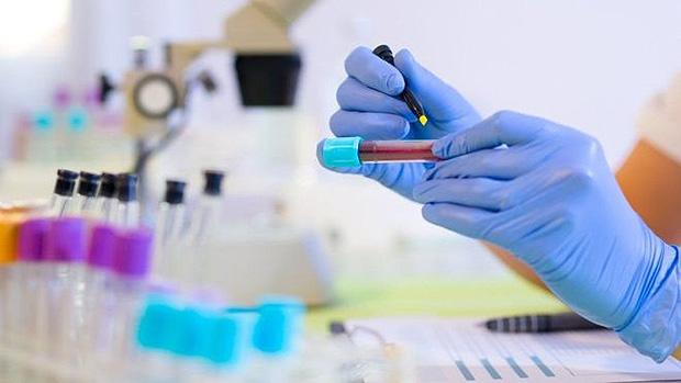 Paraíba tem 814 casos confirmados e 62 mortes por coronavírus