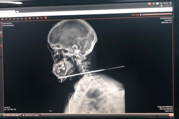 Homem tem pescoço perfurado por flecha na fronteira com a Guiana