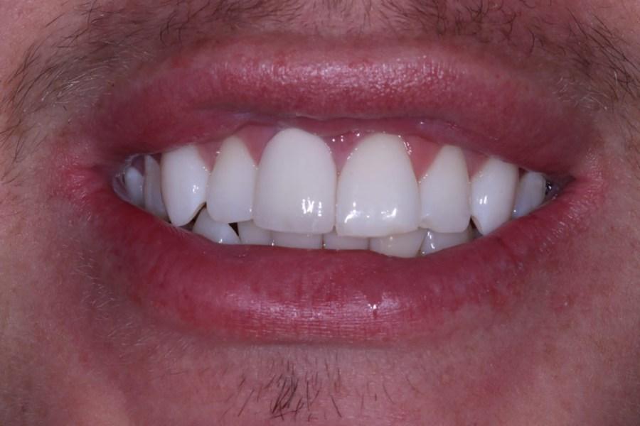 Post Crown Cosmetic Dentistry Viva Dental Studio Essex