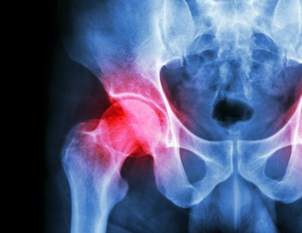How a bad hip gave me my life back