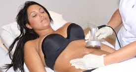 Cavitation Liposuction