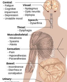 Multiple Sclerosis Symptoms