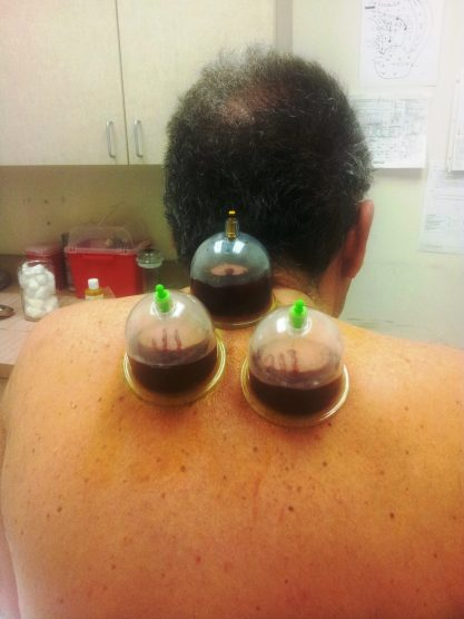 Hijama services performed by Dr. Tsan