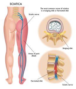 sciatica-nerve-pain