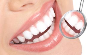 Come sbiancare i denti in modo naturale: i metodi fai da te più efficaci