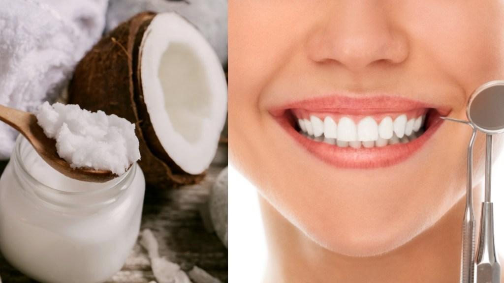 aceite de coco cuidad dientes salud bucal