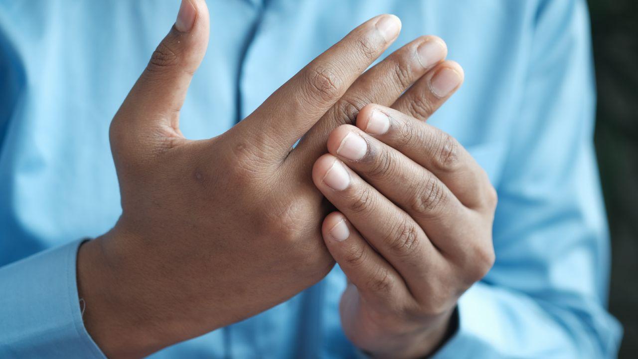 Síntomas tempranos de la artritis