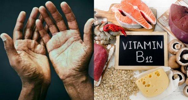 Named hidden symptoms of a critical lack of vitamin B12 for