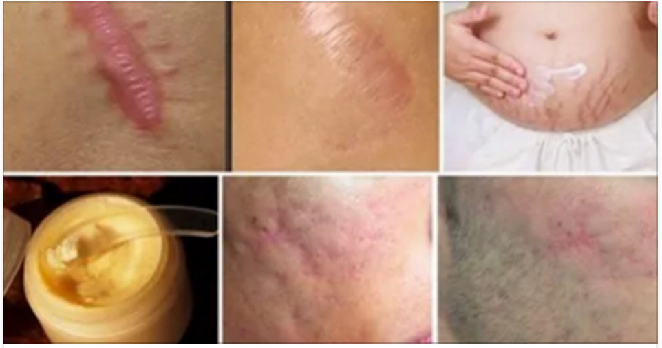 Acabe com as cicatrizes do corpo em menos de 1 mês com estes remédios caseiros!