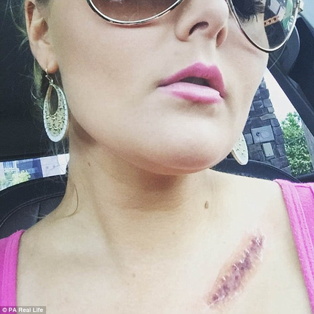 This-Woman-Is-Warning-Everyone-About-A-Dangerous-ordinary-Habit-That-Caused-A-Hole-In-Her-Face-7533-8