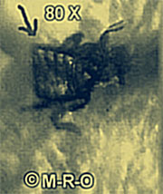 WARNING.. GRAPHIC VISUALS ~ Morgellons Victims Across the US and Europe Mog-bug-8537d