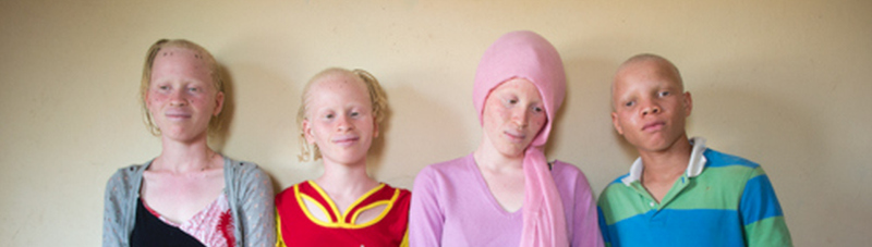 Nabiya: A Mother's Love for Her Three Daughters with Albinism