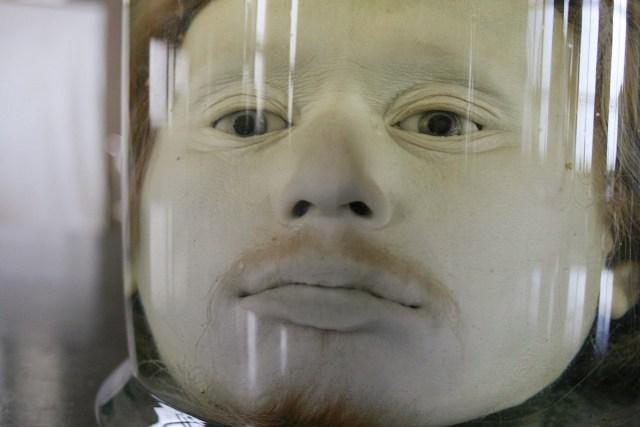 Cabeça de Diogo Alves conservada em formol