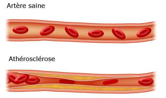 Atherosclerose-coronarienne-Extracyan-Extra-Life-Vision-Jean-Marc-Fraiche-VousEteesUnique;com