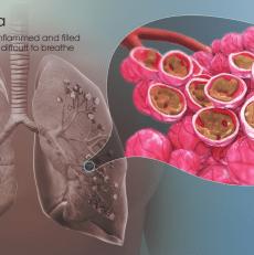 Pneumonia Treatment in Homeopathy | VRHomeo