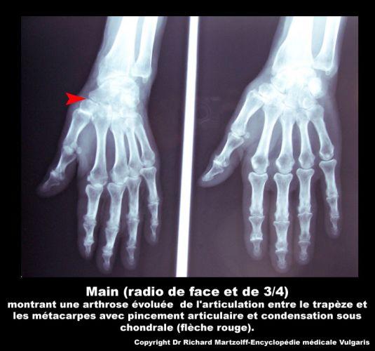 Image Photo Poignet Arthrose Du Rhumatologie