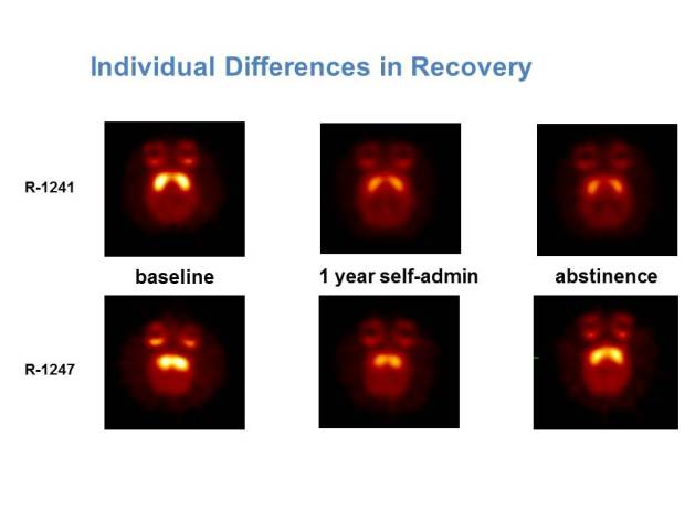 Individual Differences in Recovery