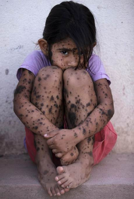 Aixa Cano, 5, who has hairy moles all over her body, sits on a stoop outside her home in Avia Terai, in Chaco province, Argentina, April 1, 2013. Doctors say Aixa's birth defect may be linked to agrochemicals, although this cannot be proven. In Chaco, children are four times more likely to be born with devastating birth defects since the biotechnology boom. CREDIT: Natacha Pisarenko/AP
