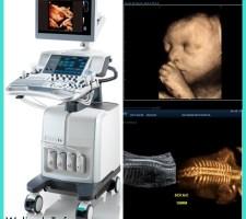 cara membaca hasil usg rahim